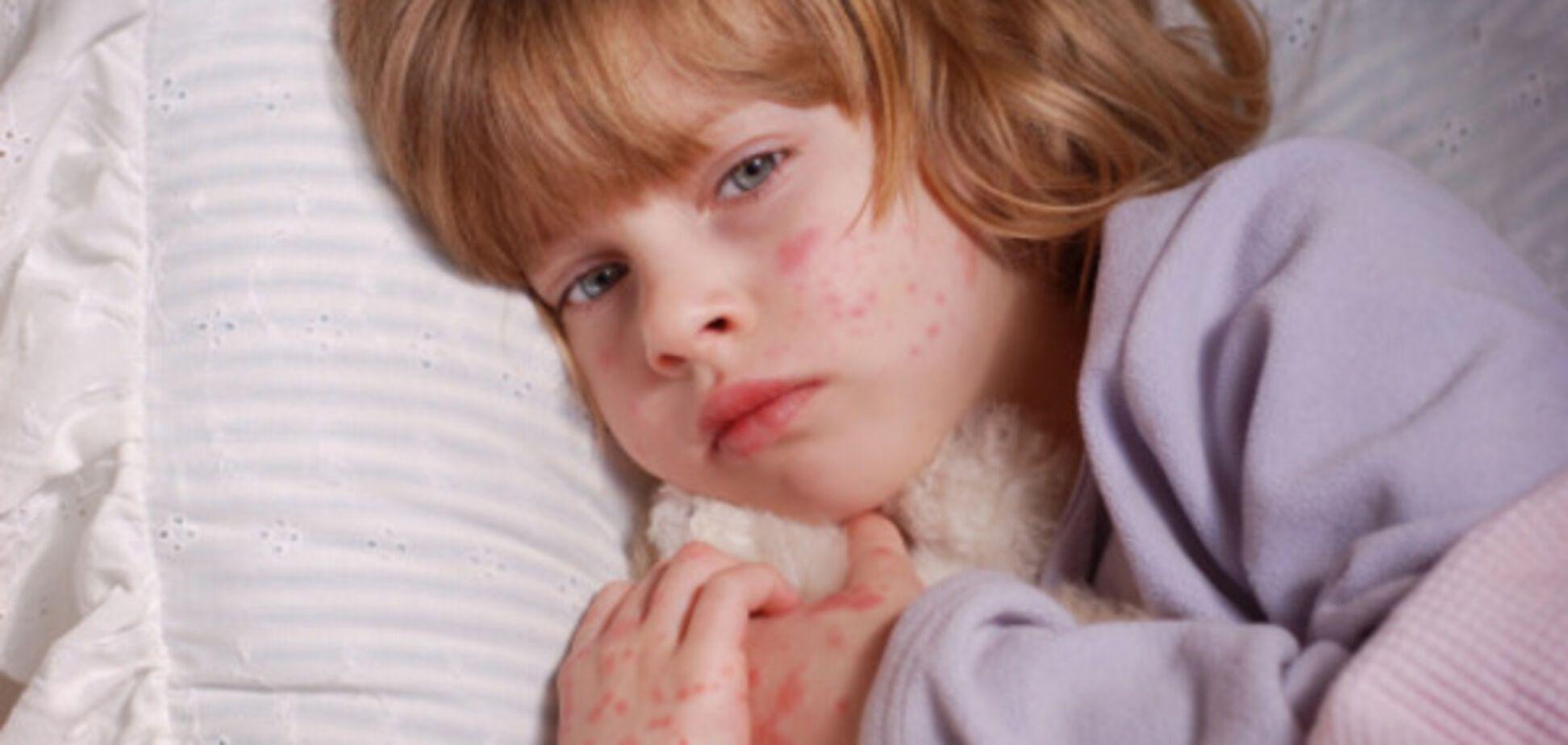 Доктор Комаровський про висипку на обличчі дитини: як зрозуміти, що це алергія
