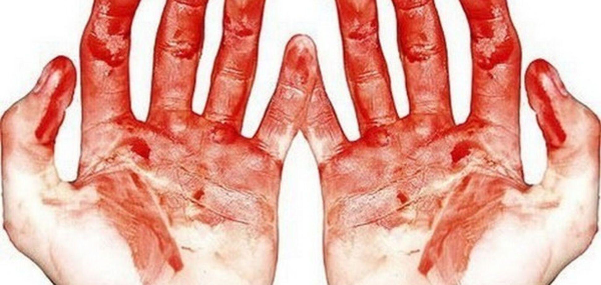 В Запорожье мужчина едва не истек кровью у собственного подъезда (ФОТО)