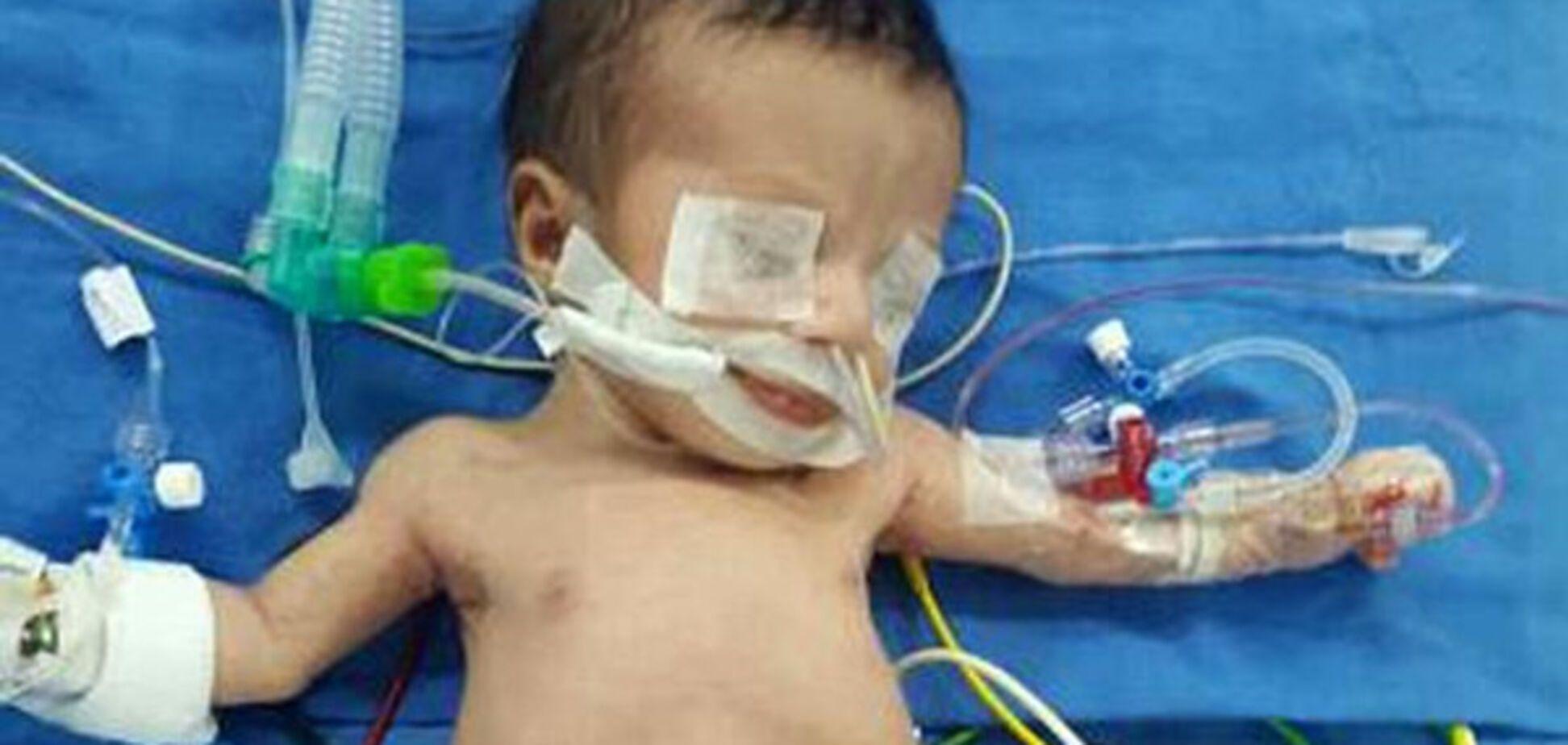 Ребенок с 8 конечностями из Ирака
