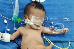 Дитина з 8 кінцівками з Іраку