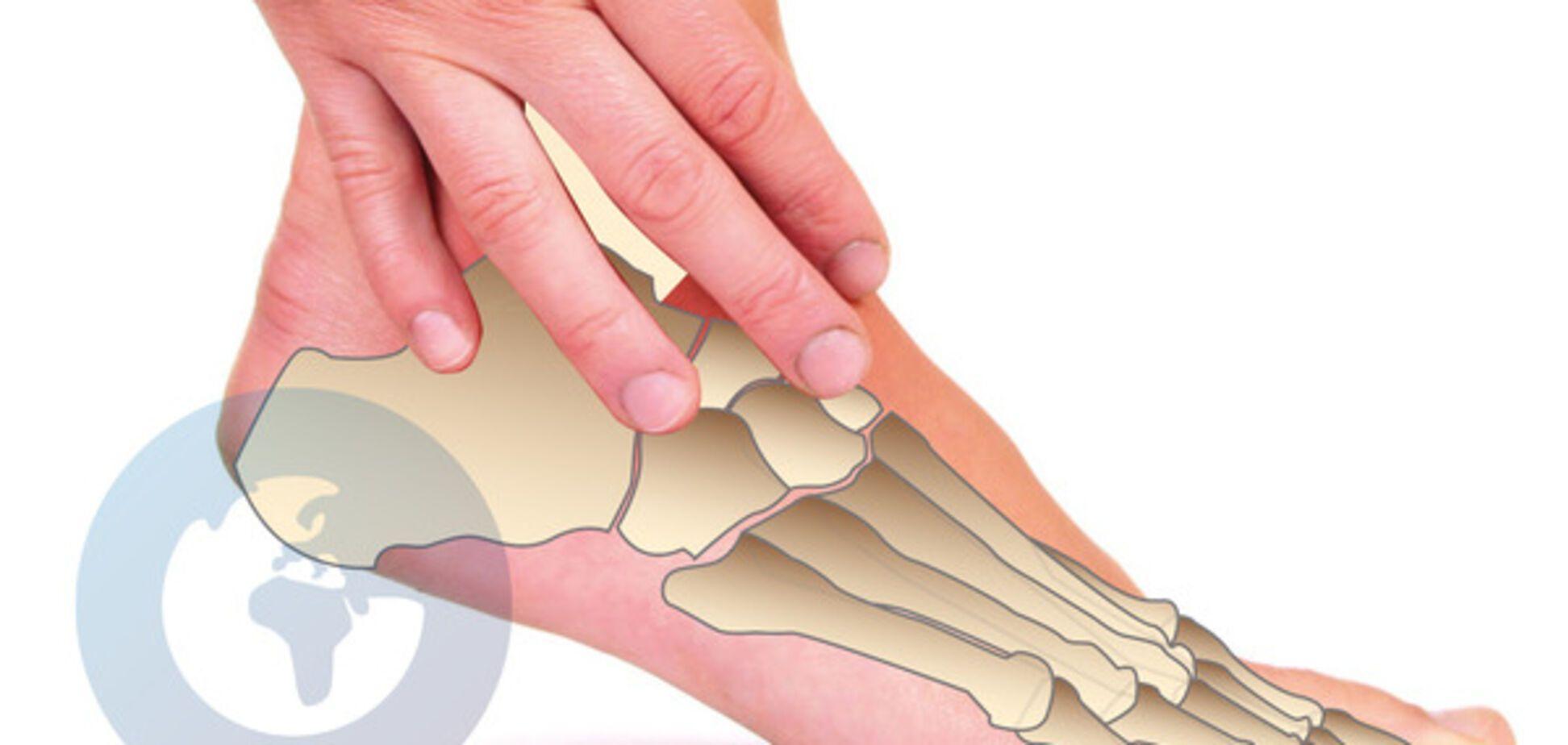 Согнуться без боли: Все о главных болезнях суставов