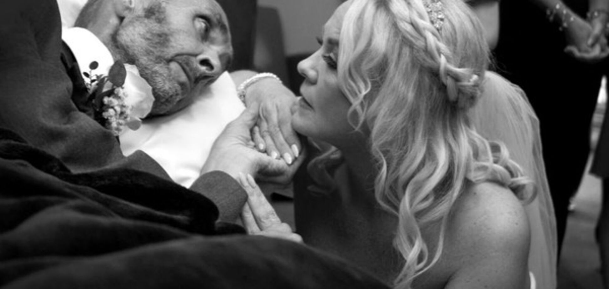 Пожениться и умереть: история больного раком мужчины растрогала Британию