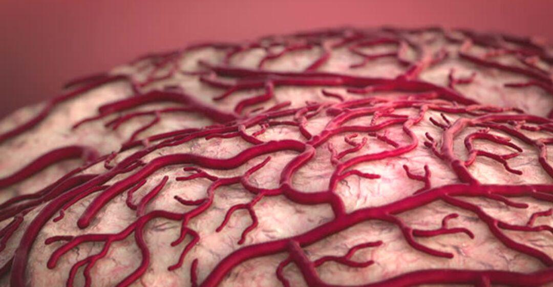 Как улучшить кровообращение головного мозга. Препараты, улучшающие кровообращение головного мозга