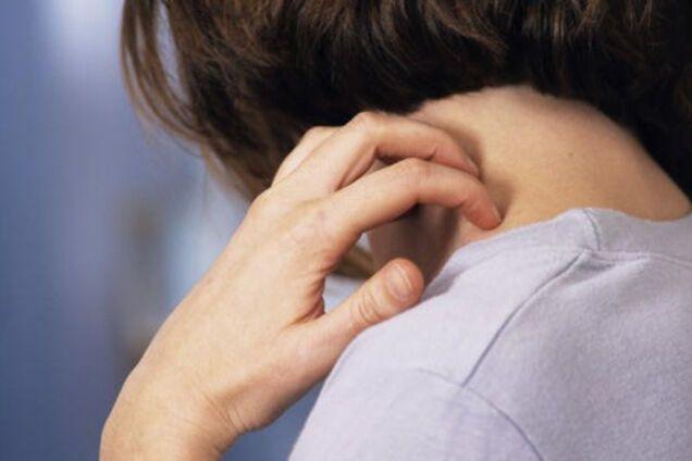 Осложнения и последствия после чесотки - Заболевания от внешних паразитов, Чесотка