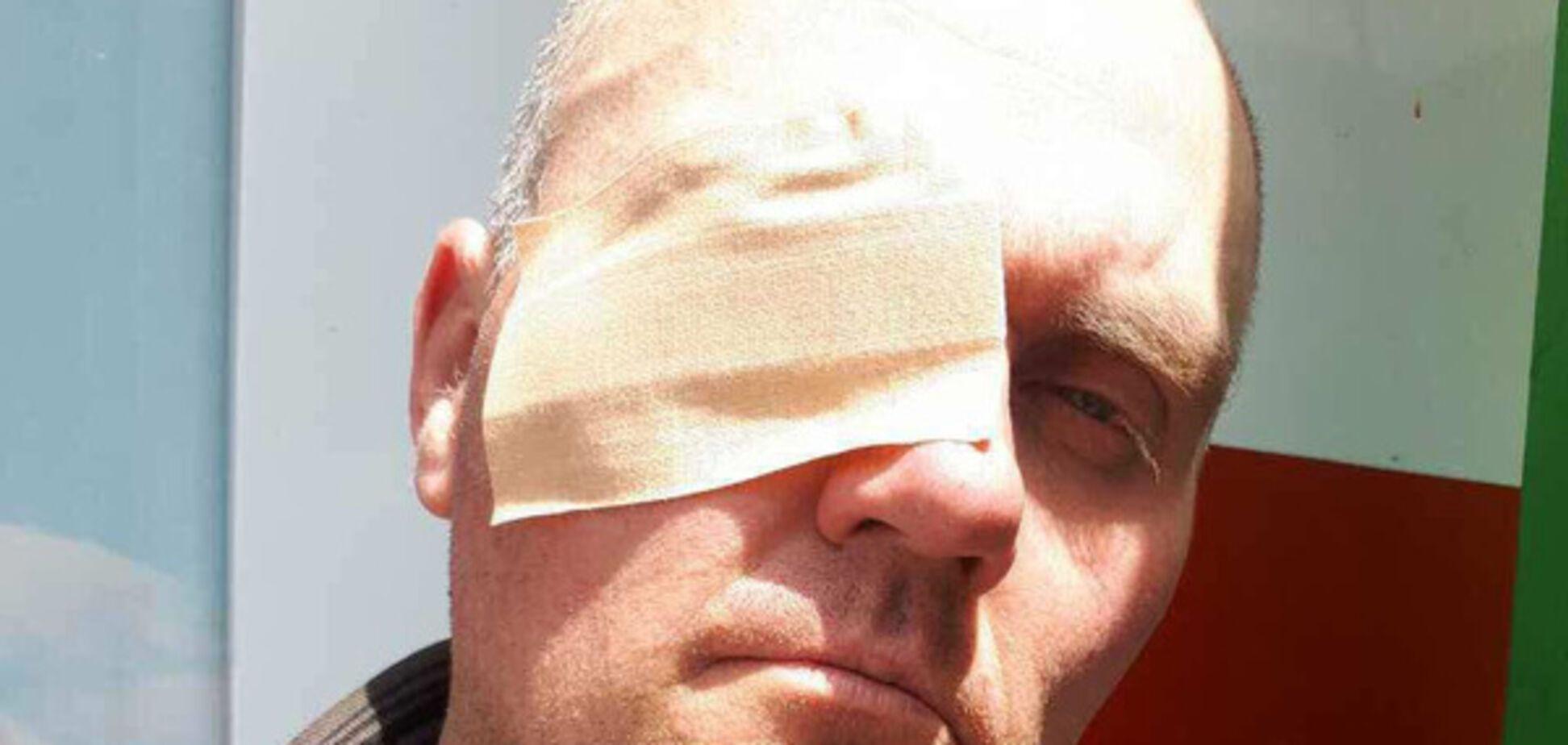 Местного жителя, который выступал за эко-заправку на Ревуцкого, активисты частично лишили зрения