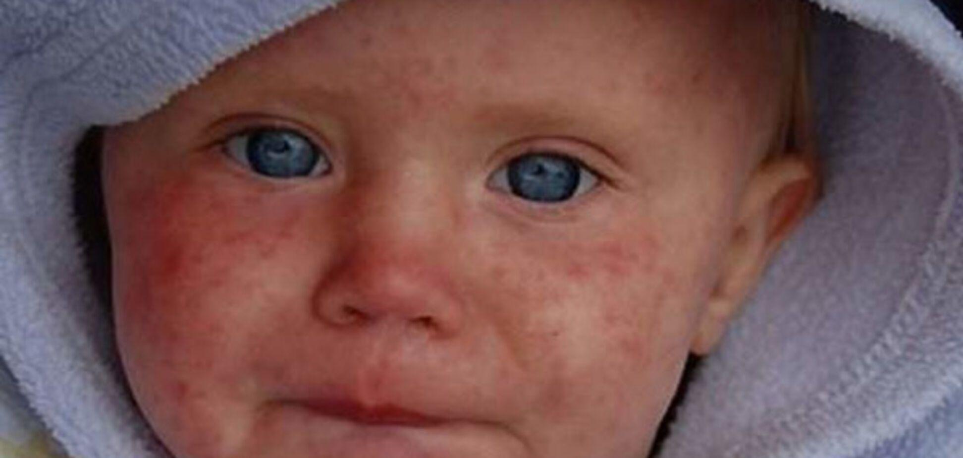 В Україні зафіксували сильний спалах небезпечної хвороби