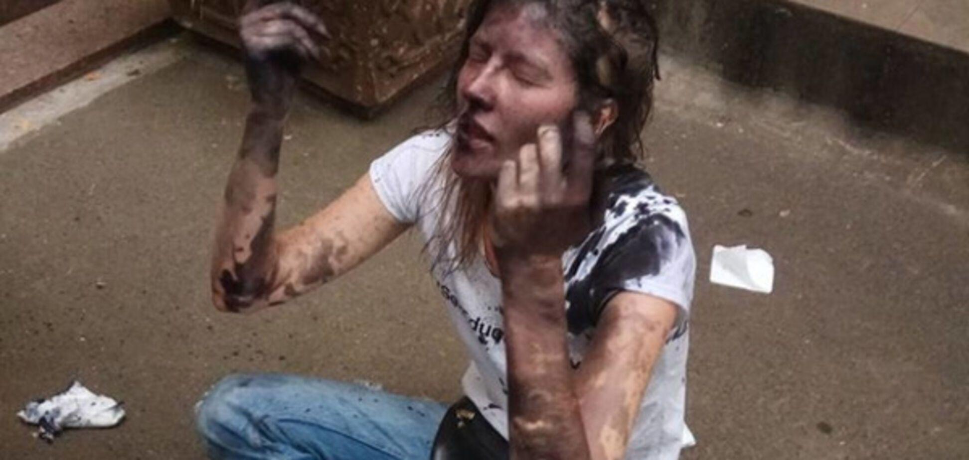 У Києві під час нападу на збори трансгендерів постраждала жертва Ландіка