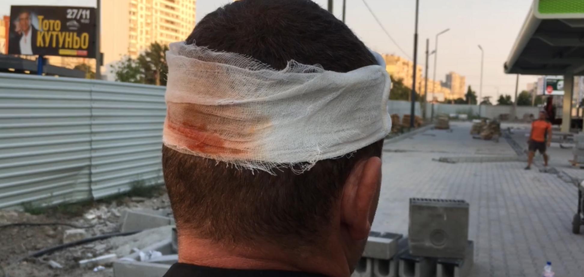 На Ревуцького тітушки, які перекривали дорогу, проломили голову охоронцю заправки