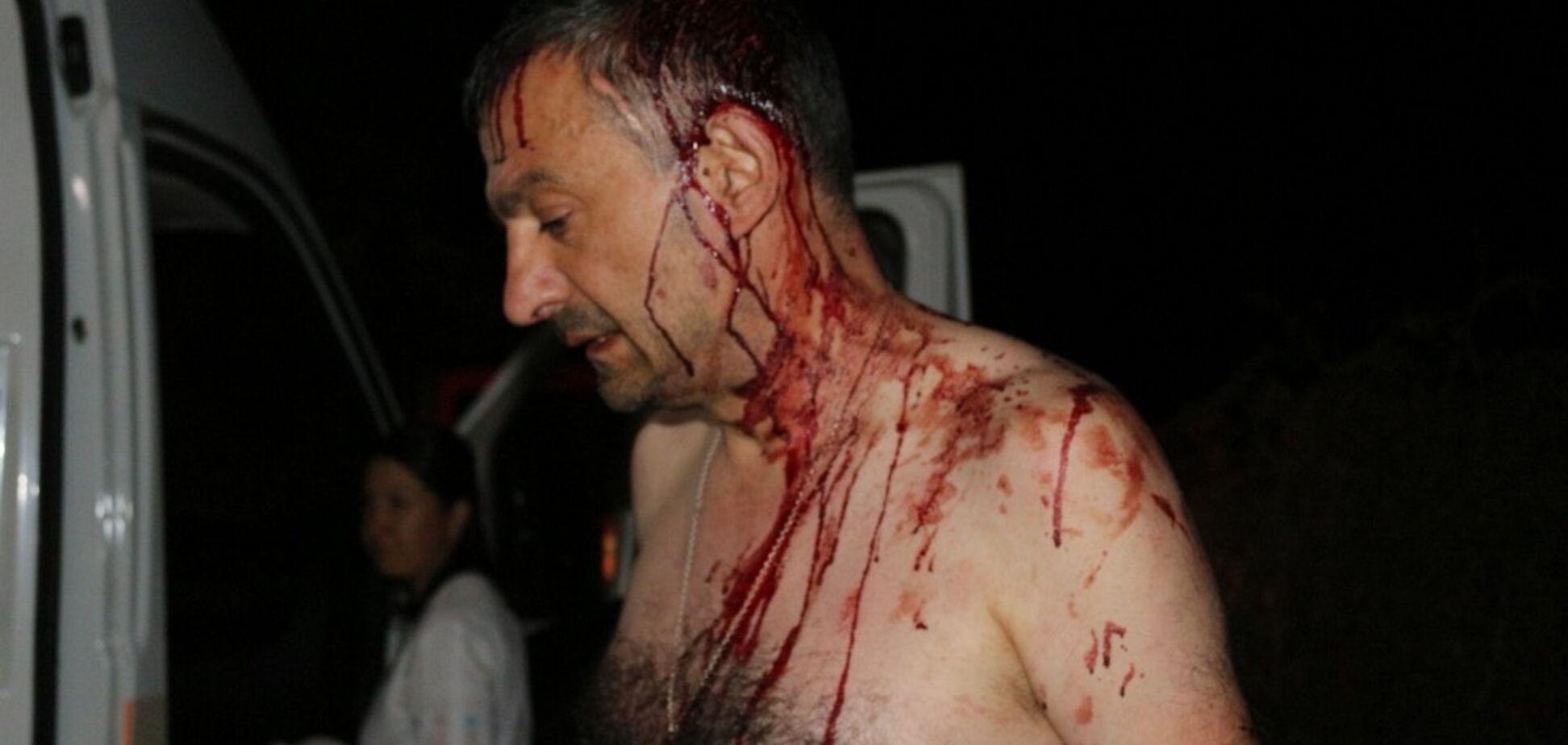 Напали с железными битами: на Одесщине жестоко избили журналиста