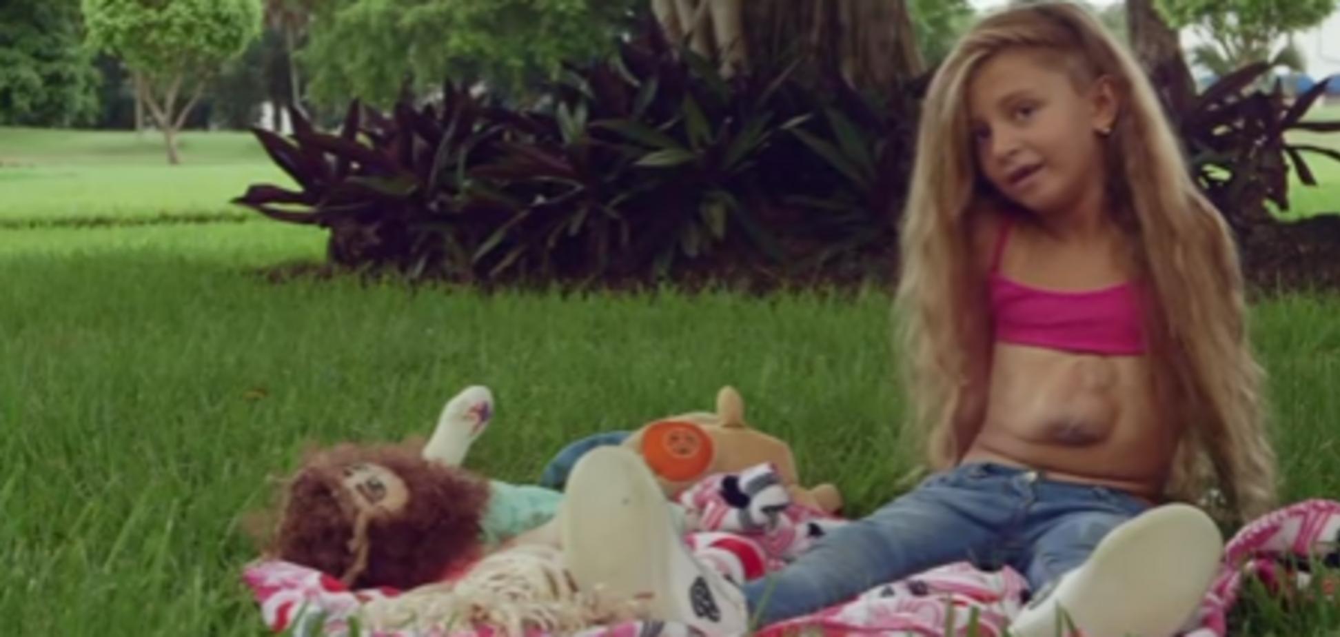 Відео з дівчинкою, у якої серце б'ється назовні, шокувало мережу