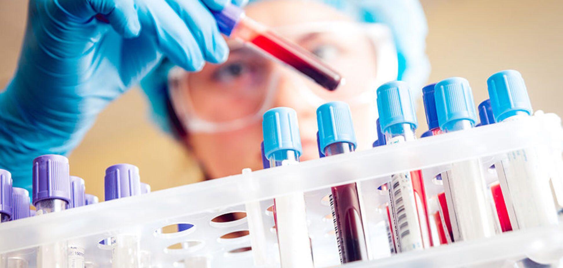 Ученые создали антитело, уничтожающее 99% штамов ВИЧ
