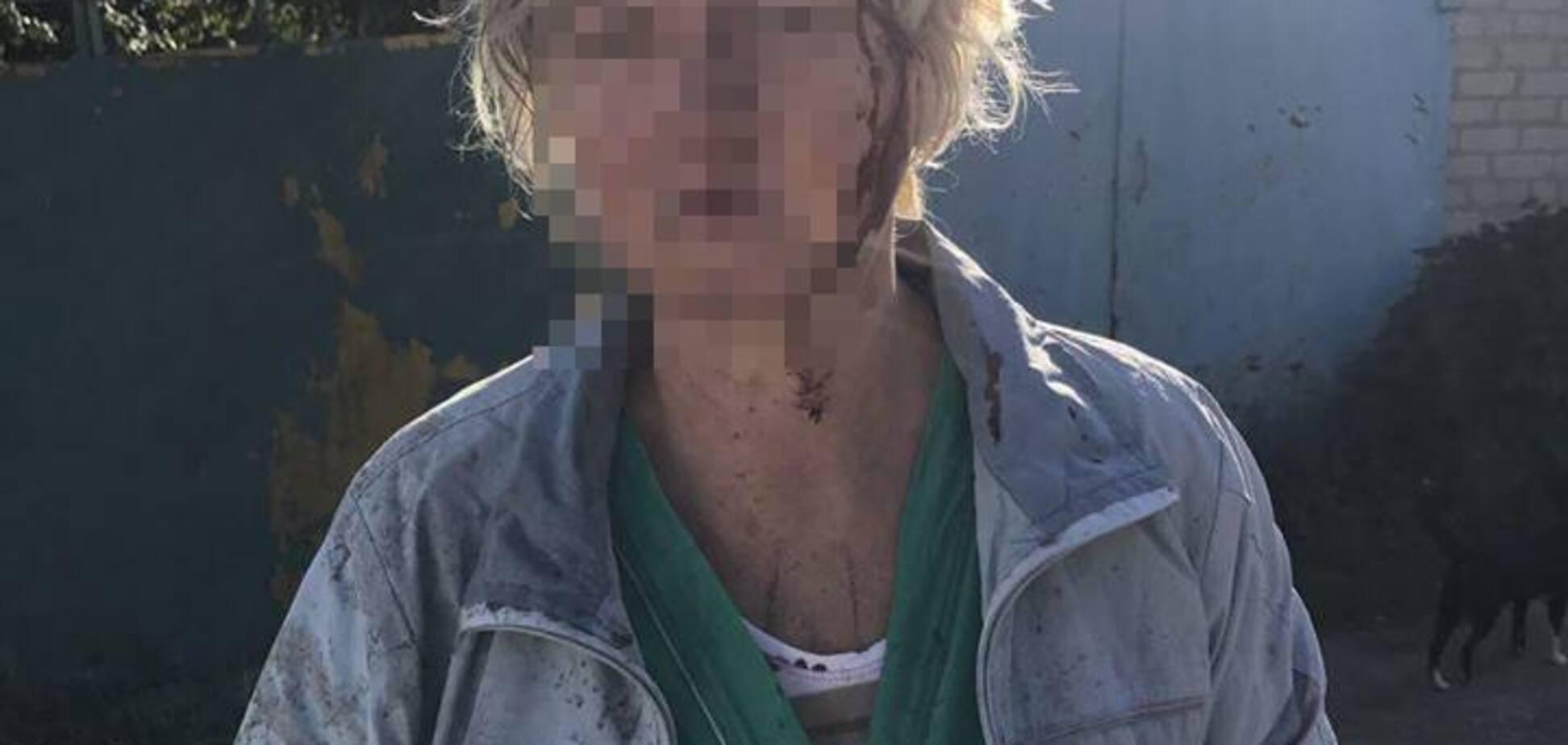 В Запорожье женщина избила соседку ведром