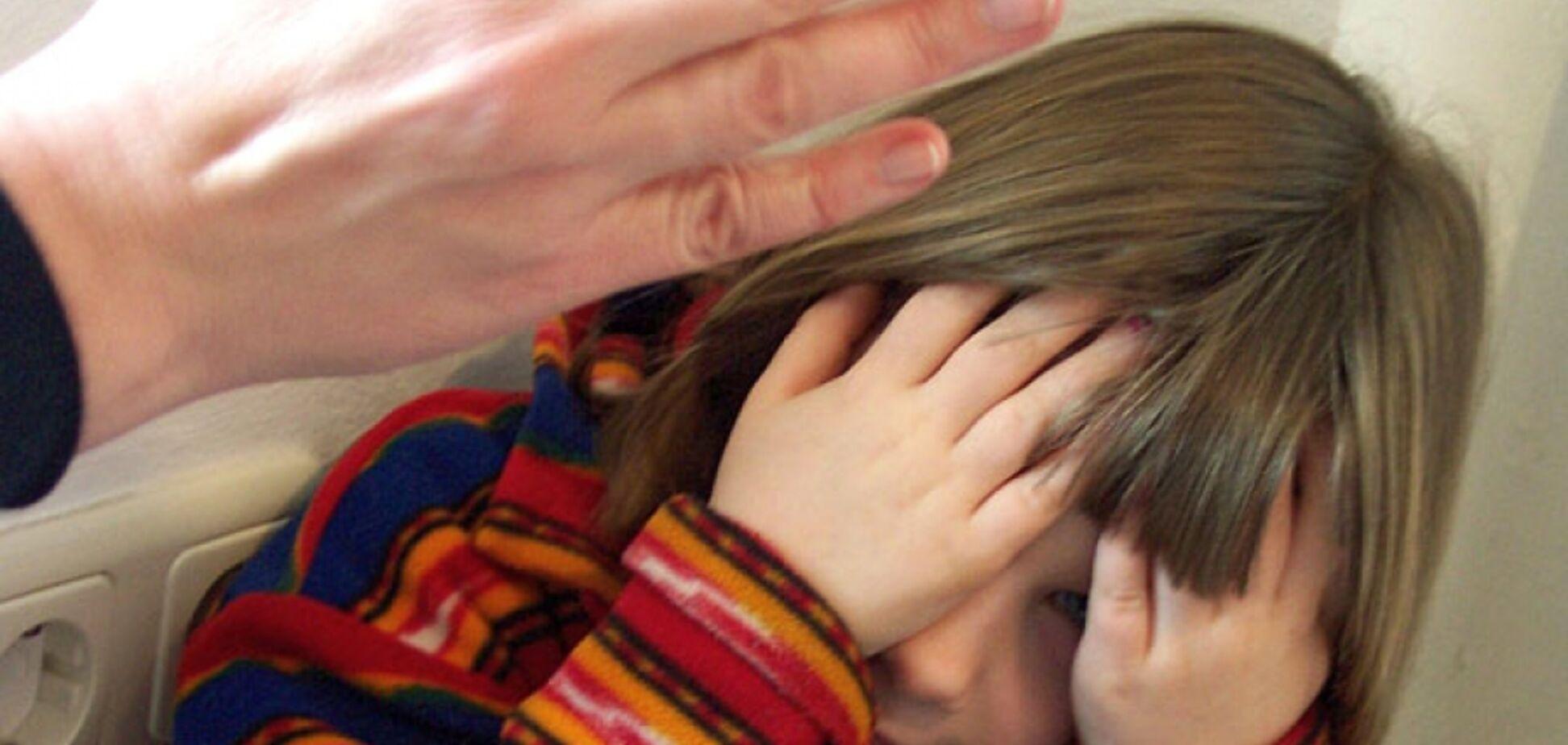Дети в синяках и ссадинах: на Ивано-Франковщине воспитательницу детсада обвинили в побоях