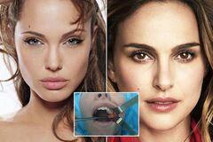 Как у Анджелины Джоли: хирург пожурил украинок за новомодные операции