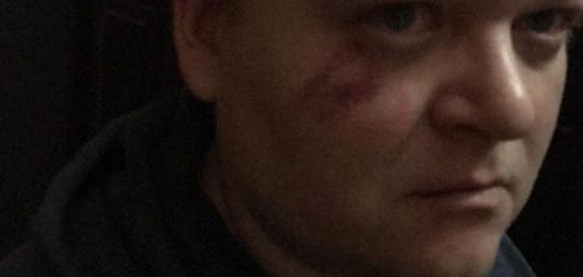 С криками 'Смерть п*дарам': в Киеве избили актеров 'Травести шоу'