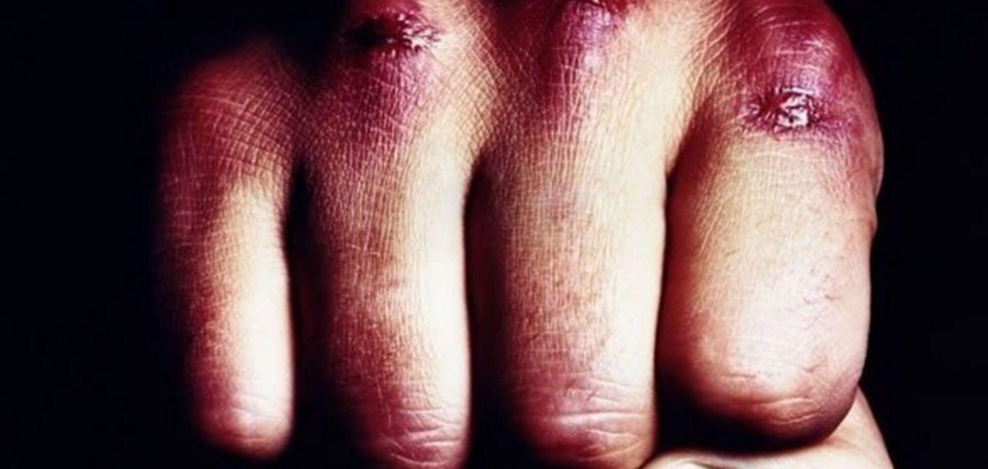 Запорожец до смерти забил 4-летнего пасынка: эксклюзивные подробности резонансного дела (ФОТО)