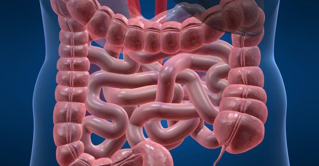 Чем убить кандидоз кишечника: возбудители, здорового человека, молочница, осложнения, профилактика, слизистые оболочки, тонкой кишки, человеческого тела