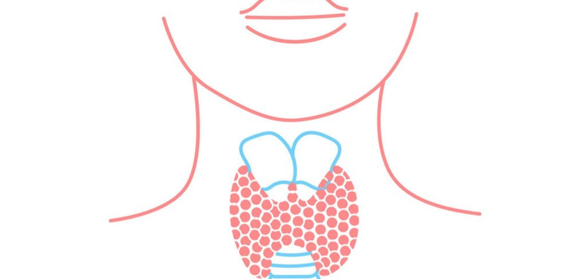 Как жить без щитовидки?