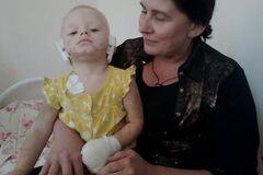 Без ушей и пальцев: искусанный собакой ребенок из Славянска нуждается в помощи