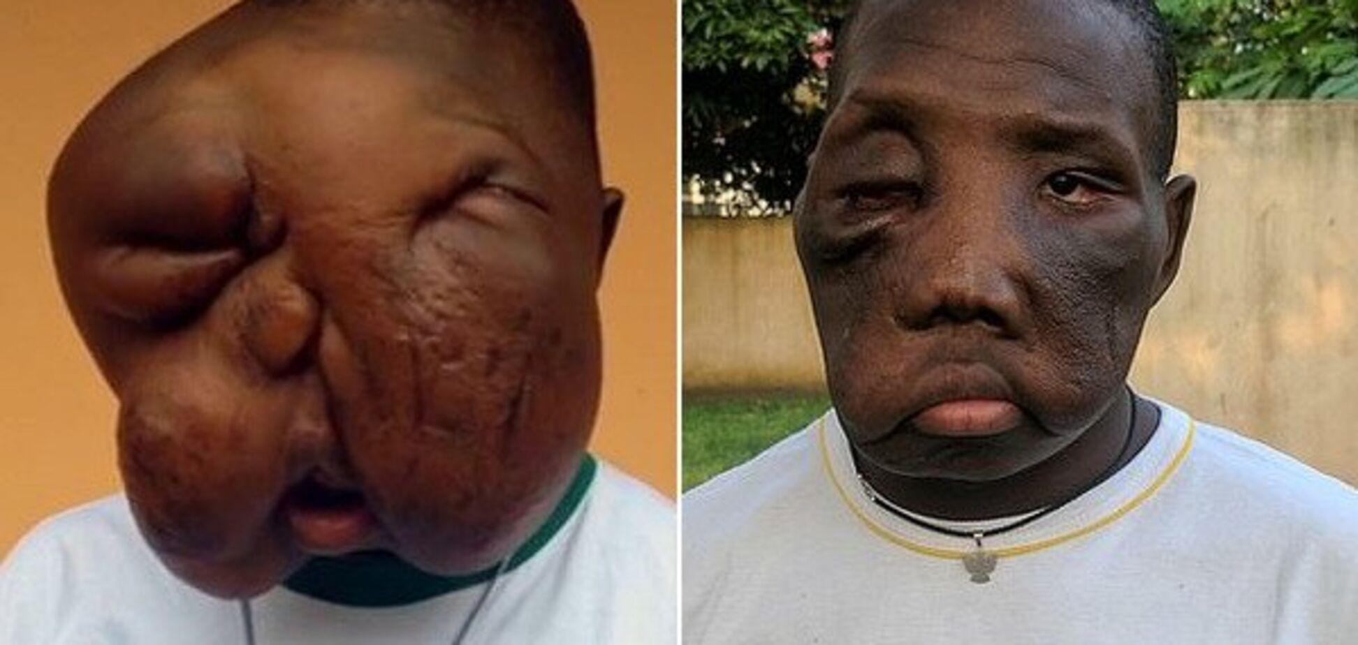 Врачи удалили подростку огромную опухоль на лице: поразительные фото до и после