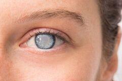 Повышенное внутриглазное давление и глаукома