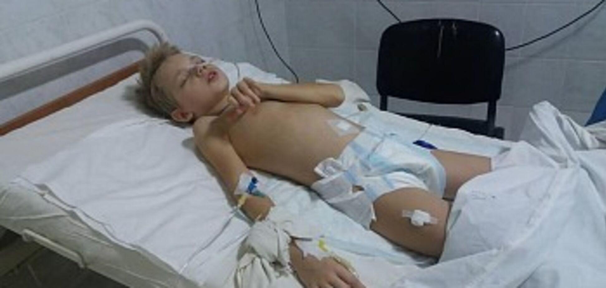 ''Кричав від болю'': у Бердянську розгорівся скандал через діагноз дитини