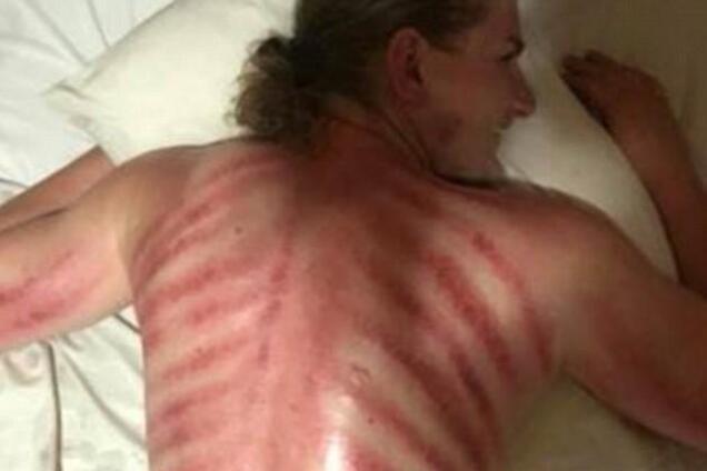 ''Вытащил красного дракона'': туриста на Бали покалечил массажист