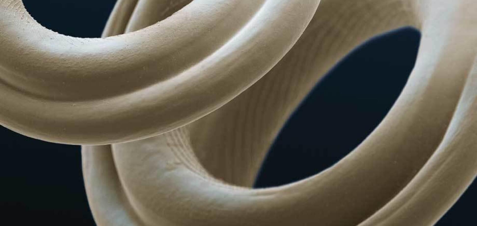 Глисты: стронгилоидоз