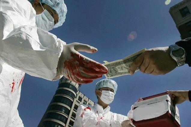 В Україні процвітає чорний ринок органів