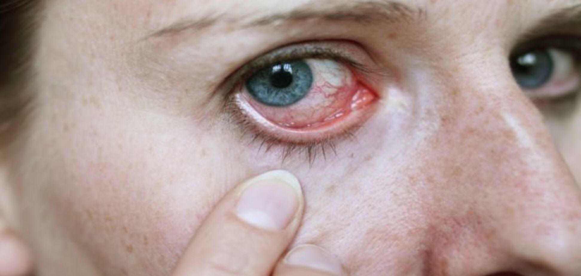 Действуют как зомби: в глазах человека найдены опасные аномальные клетки