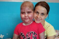 ''Выписали в кровавых бинтах'': в Киеве ребенка с раком выставляют на улицу, больница отрицает