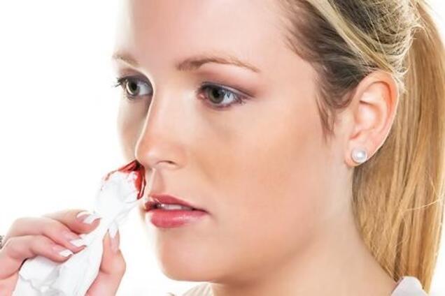 Носовое кровотечение - как реагировать на проблему
