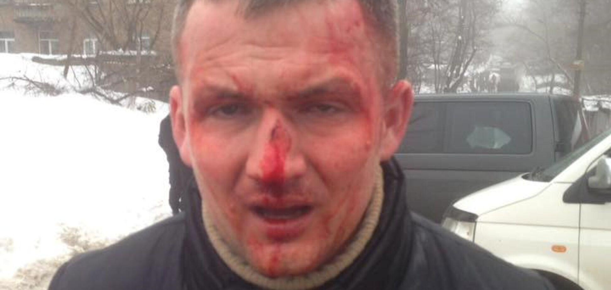 Почему избили Левченко