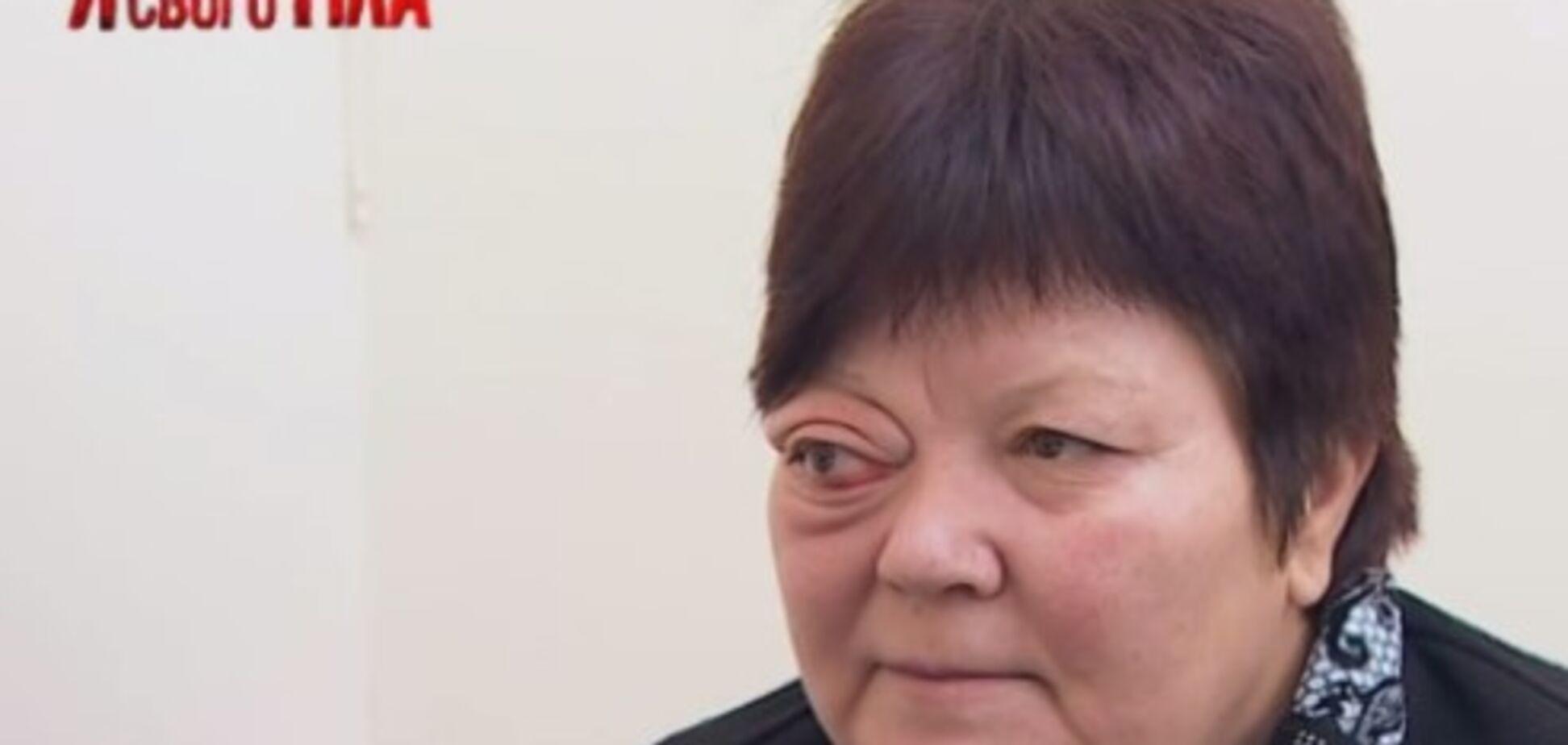 'Я соромлюсь свого тіла': как спасали выпадающий глаз