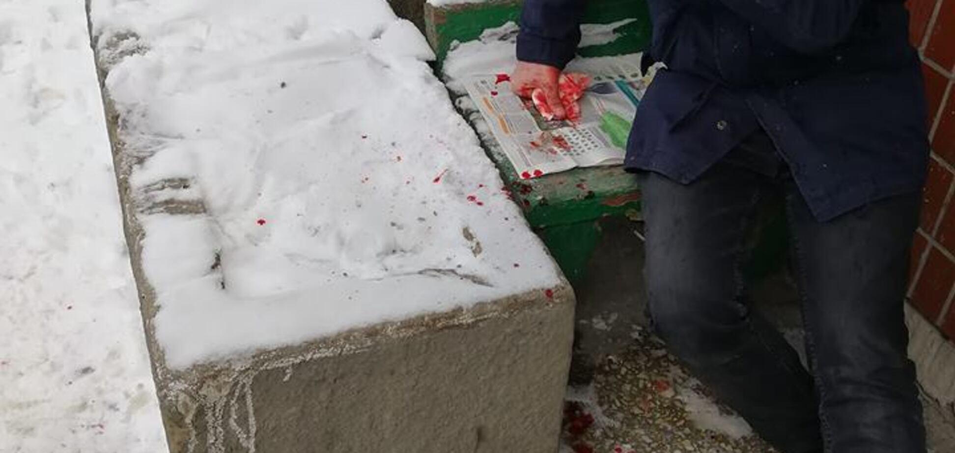 Под носом у полицейских: в Киеве разбили голову мужчине
