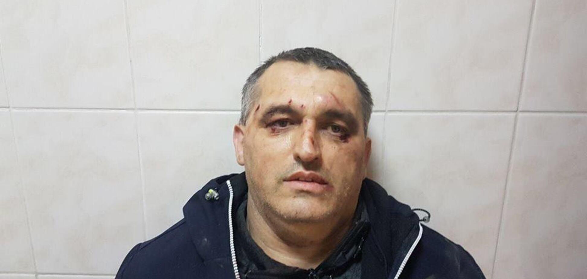 Перейшов дорогу 'шишкам': в Чернівцях побили громадського активіста