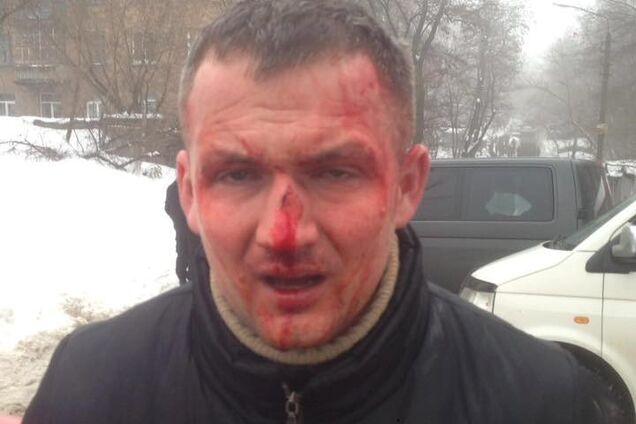 Побиття Левченко: з'явилося провокаційне відео з нардепом