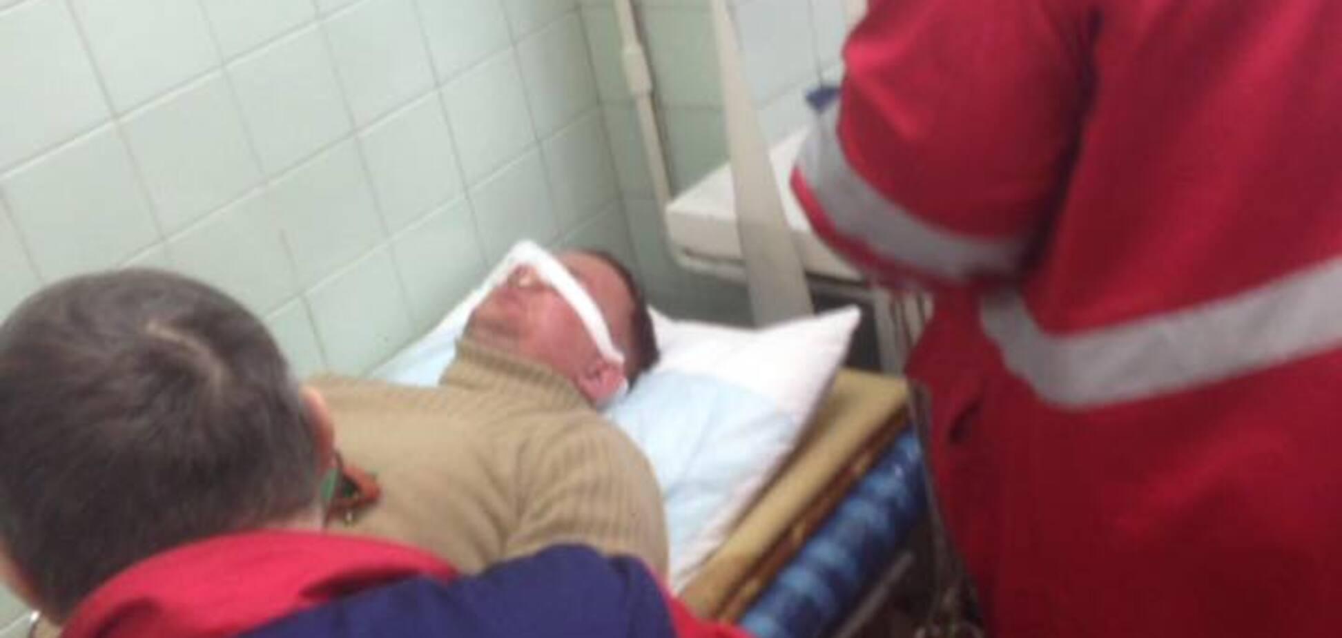 В Киеве до потери сознания избили нардепа Левченко: подробности