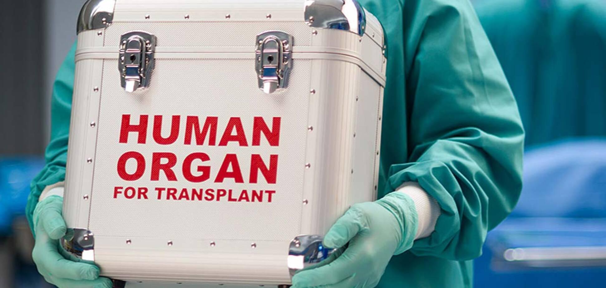 Деякі українці шукають можливість продати свої органи