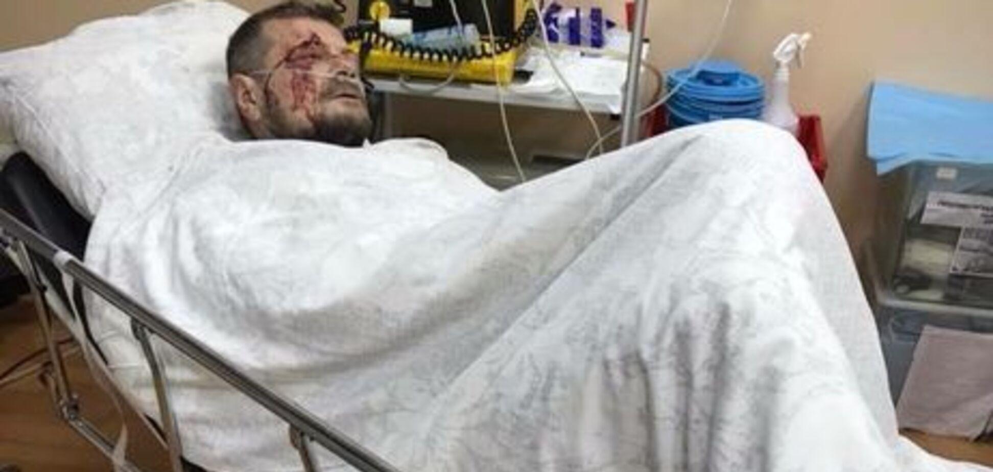 Теракт раскрыт: в СБУ отчитались о покушении на Мосийчука