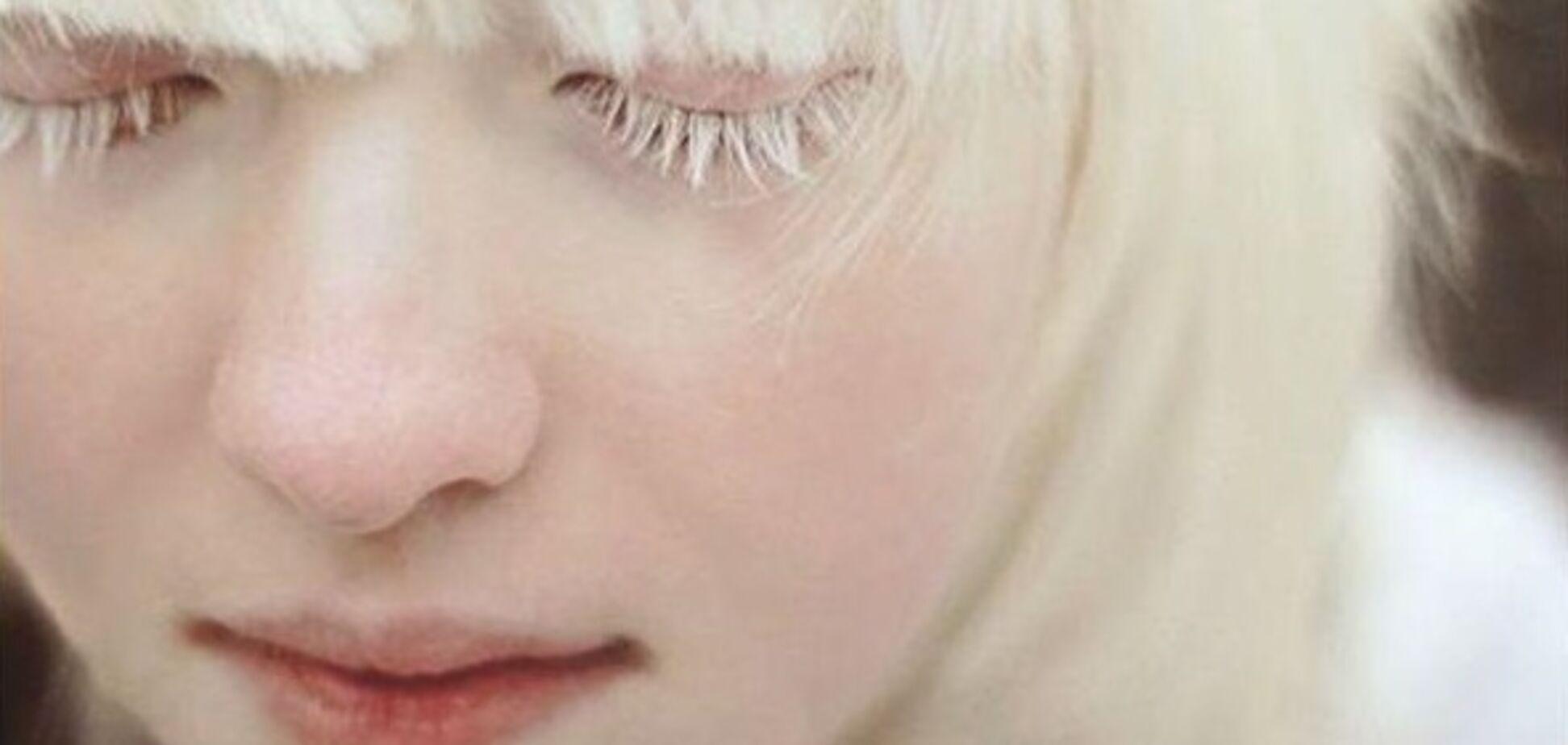 'Чому він такий білий?' Як живуть альбіноси в Україні