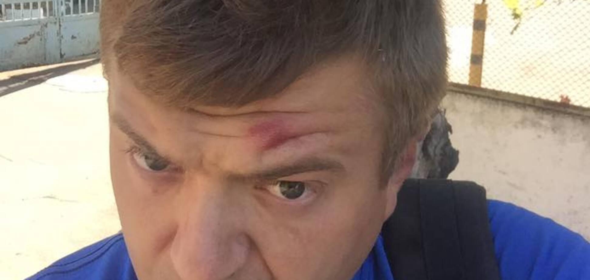 'Били сильно': в Херсоне напали на известного журналиста
