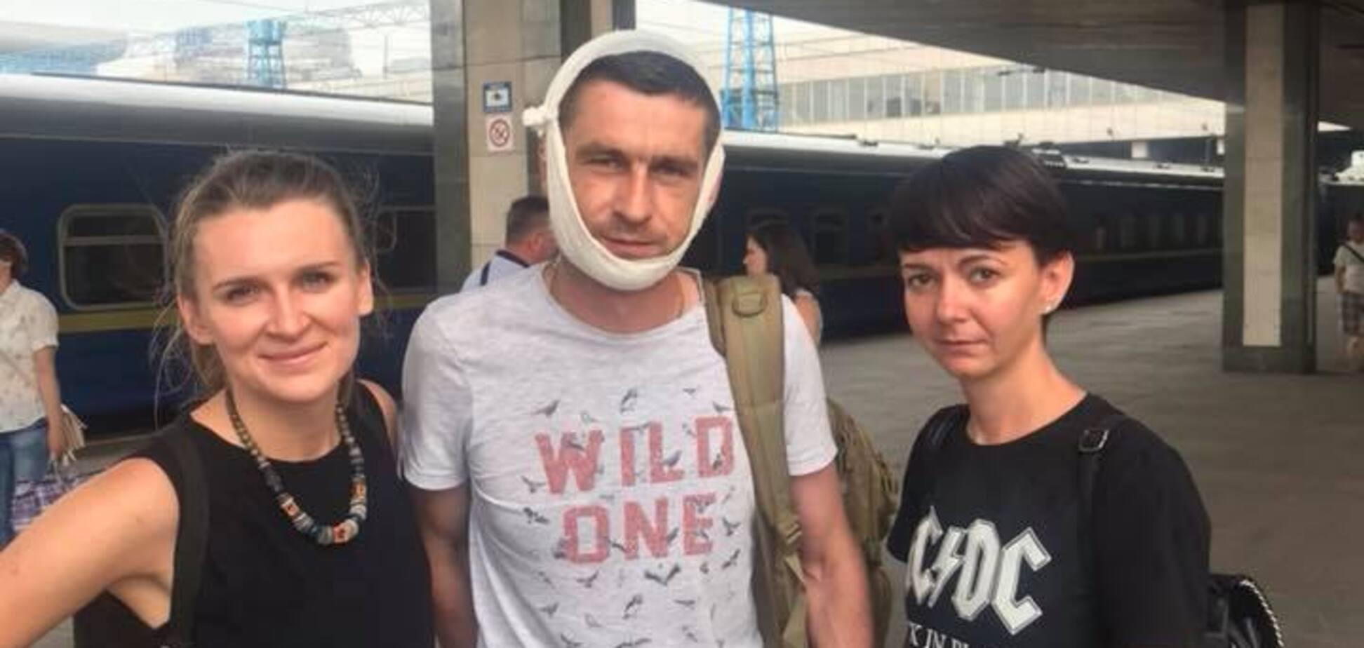Сбежал в Крым: сломавший челюсть пограничнику в Мариуполе оказался 'титушководом'