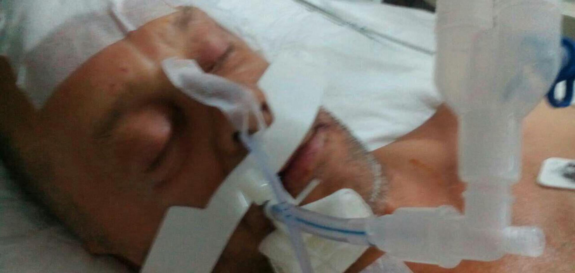 'Через програш збірної': жорстоко побитого росіянином українця покинули в Туреччині у комі