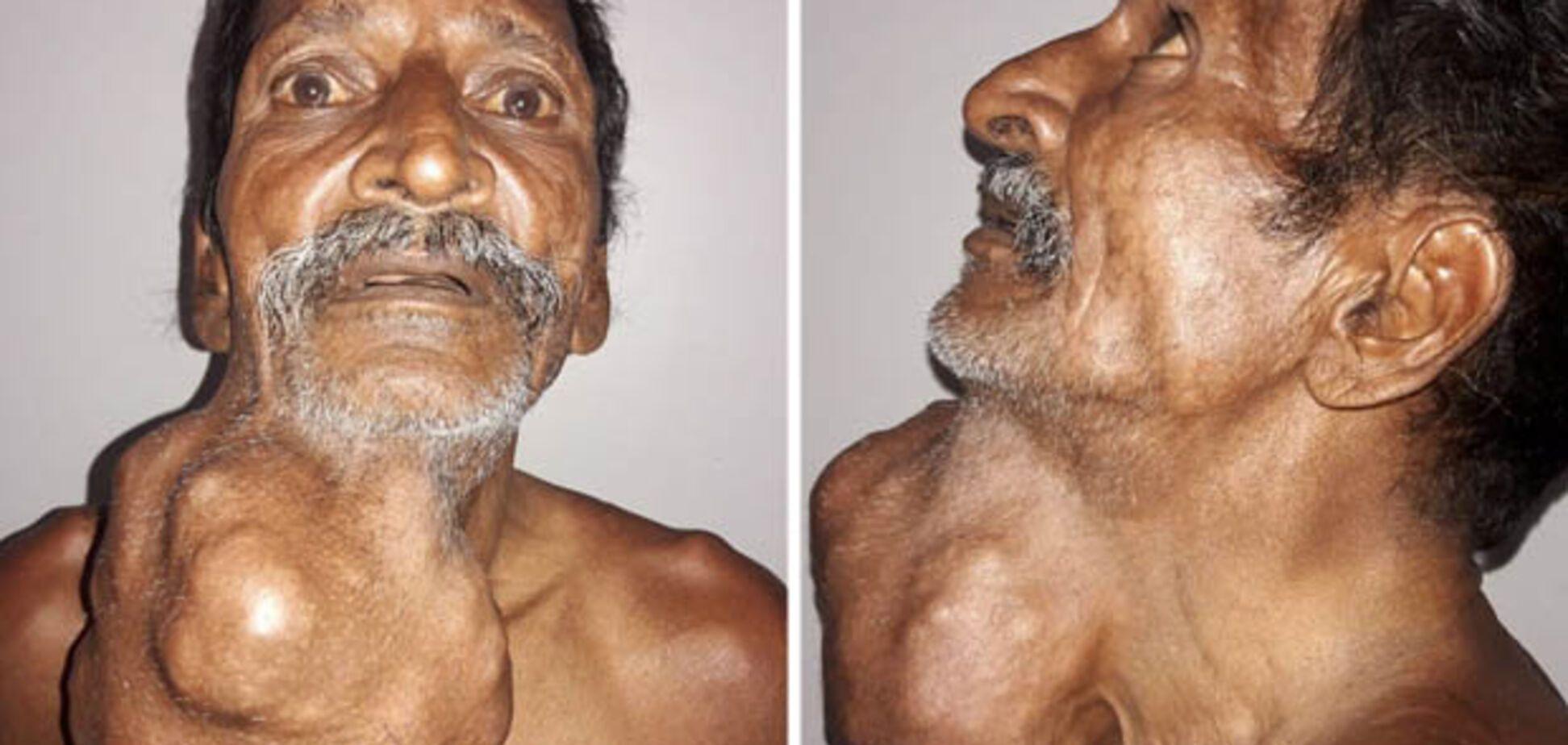 У чоловіка на шиї виросла пухлина розміром із голову: жахливі фото