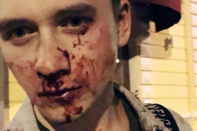 Побитий у Києві блогер із Росії заговорив українською
