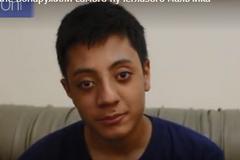 В мире нашли самого пучеглазого мальчика: как он выглядит