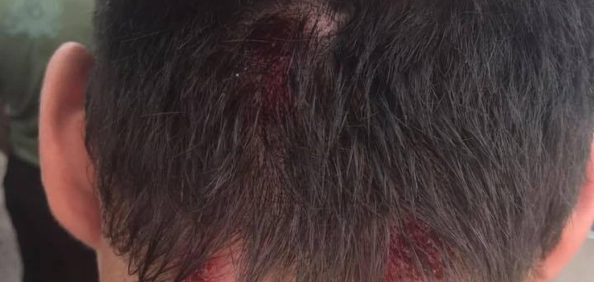 Під Харковом підстрелили відомого блогера: є подробиці і фото