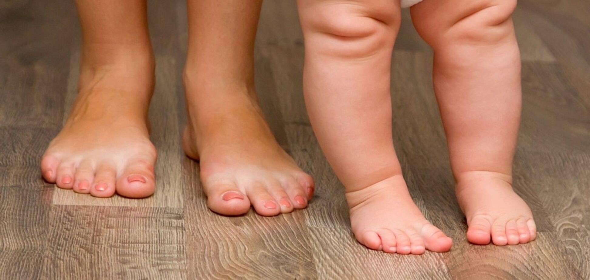 Здоровые стопы: опасная обувь