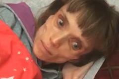 Весит 17 кг: психиатр предложил девушке главную роль в фильме ужасов